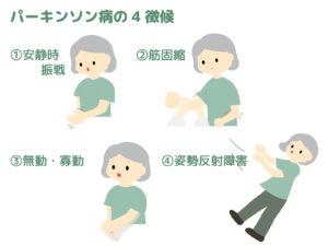 パーキンソン病4大症状